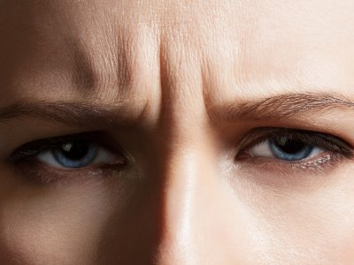 Angry face of a young woman with facial wrinkles closeup