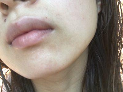 マスク 口 の 周り 肌荒れ